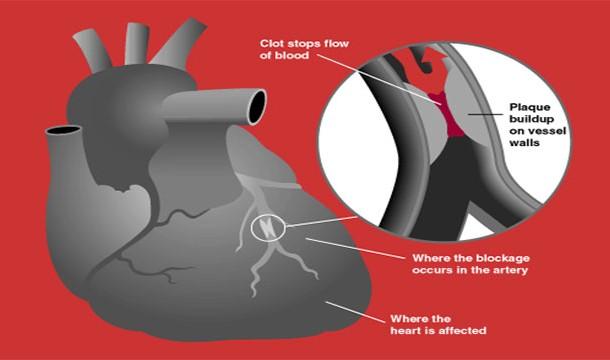 حمله قلبی همیشه باعث بروز صدمات جبران ناپذیر می شود !